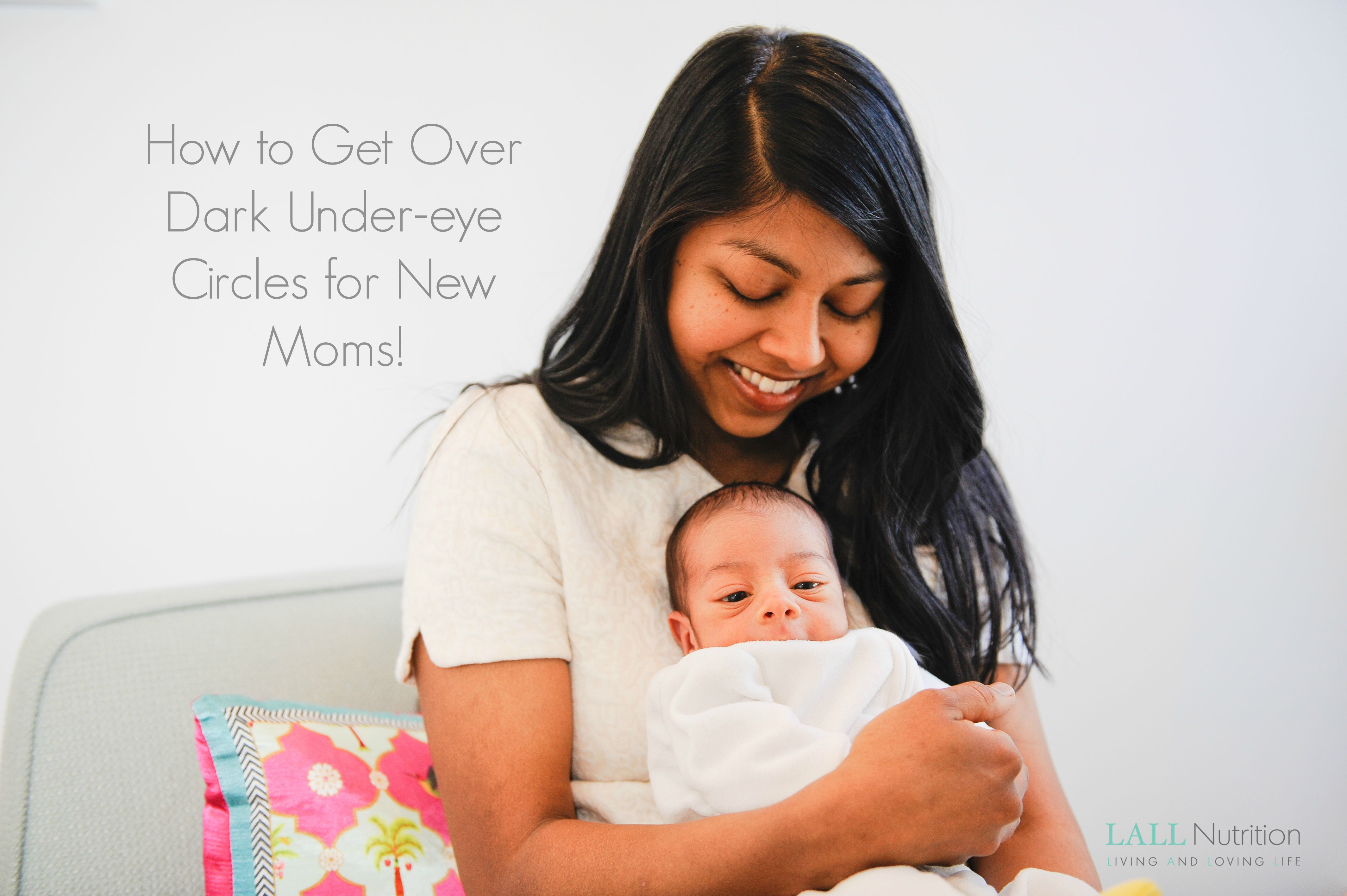 How to to Get Over Dark Under-eye Circles for New Moms!